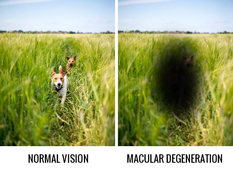مقارنة بين الرؤية بعين مصابة بالتنكس البقعي (يمين) مع العين السوية