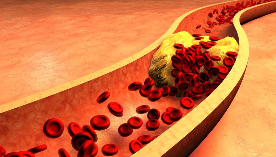 صورة توضح ترسب الكولسترول في جدران الأوعية الدموية